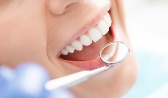 Professionelle Zahnreinigung mit Untersuchung