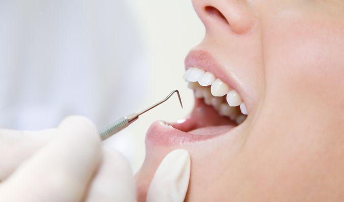 Zahnärztlicher Keimtest